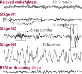 Brain Wave Patterns
